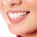 Sanatatea dentara