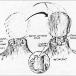 Primul transplant de cap va avea loc in curand