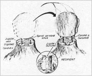 transplant de cap
