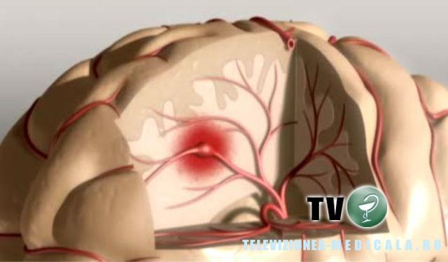 Accident cerebral, accident vascular cerebral
