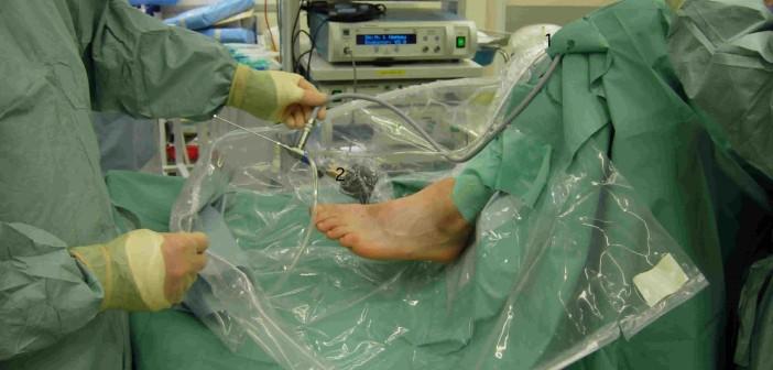 cursuri artroscopie