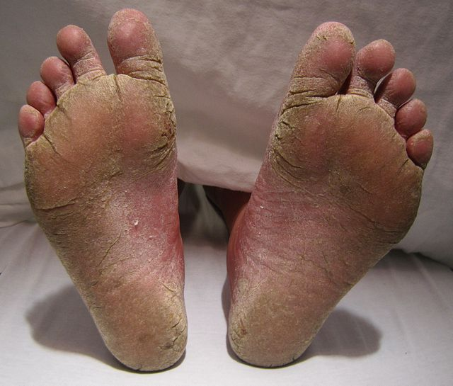 ciuperca piciorului