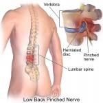 Ce este hernia de disc lombara? Tipuri de tratament