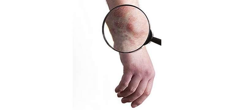 tratament eczema uscata tratamente