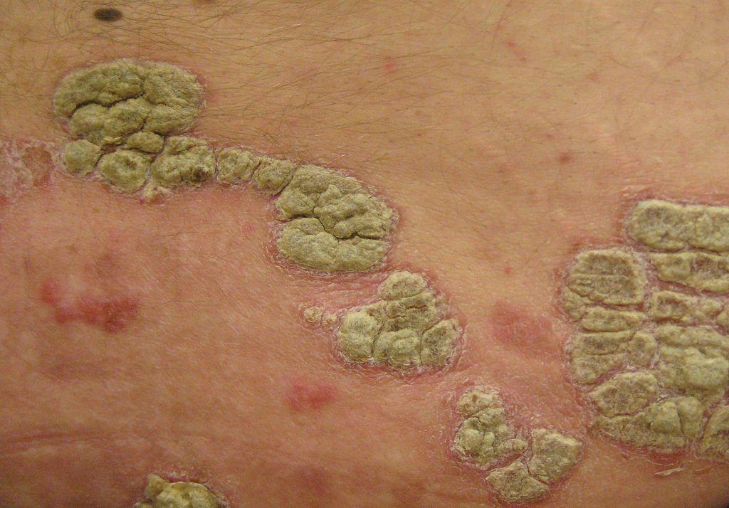 eczema intre picioare barbati goi pe