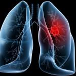 Conferinte: cancer pulmonar si boli pulmonare rare