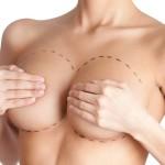 Chirurgia estetica – cum facem aceasta alegere? (VIDEO)