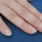 Mit sau adevar: Petele albe de pe unghii – lipsa de calciu?
