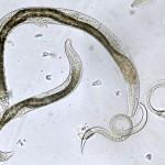 Parazitii intestinali – periculosi pentru sanatate. Cum putem sa scapam de ei?