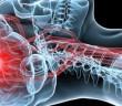 AVC, accidentul vascular cerebral