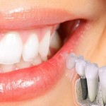 Premiera in stomatologie. S-a lansat implantul V3