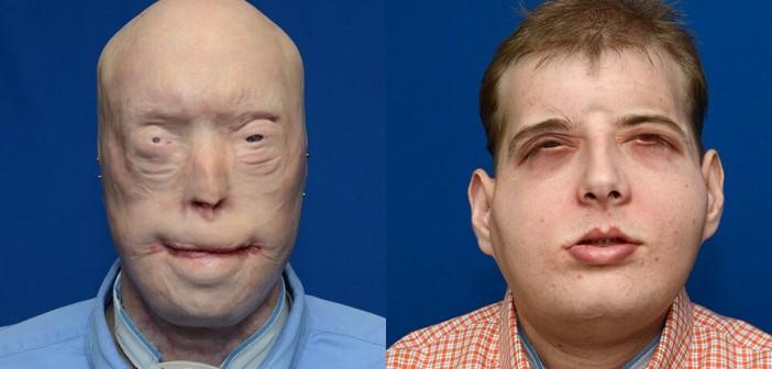 transplant de fata 1