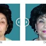 Totul despre liftingul facial, cu prof. dr. Tiberiu Bratu (VIDEO)