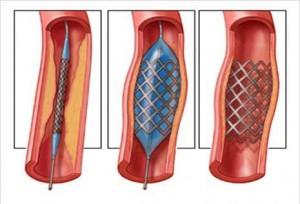 cirurgia_endovascular_0
