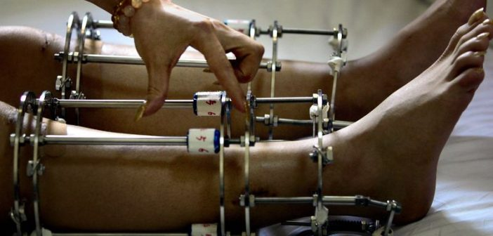 operatie prelungire