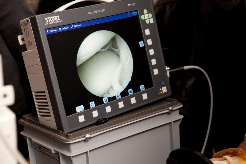 artroscopie umar